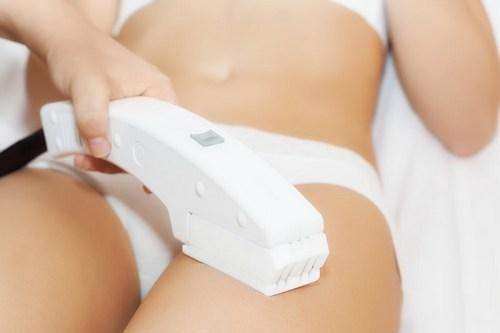 процедура лазерной эпиляции