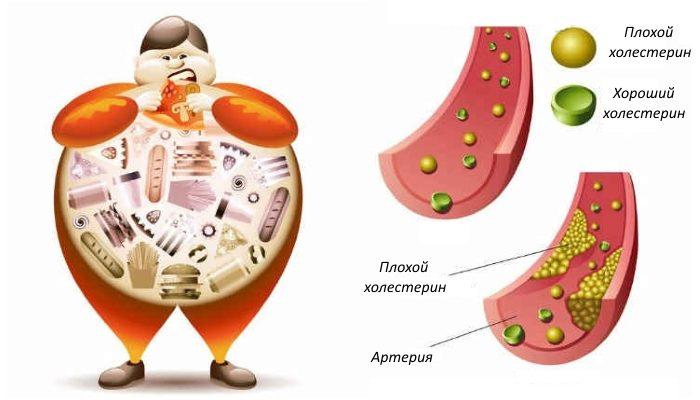 как нормализовать уровень холестерина